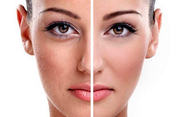 12 способов избавиться от пигментации на лице