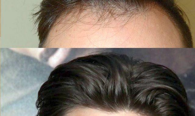 Полезен ли витамин E для волос?