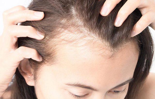 8 простых способов лечения выпадения волос на висках