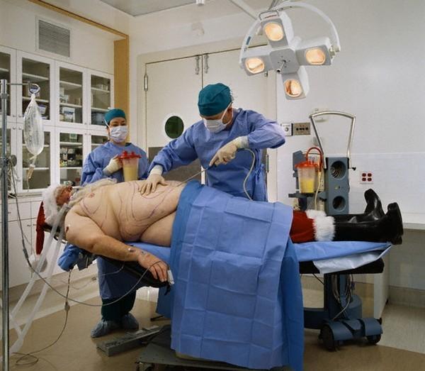операция по удалению лишнего веса
