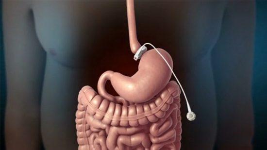 операция по ушиванию желудка при ожирении