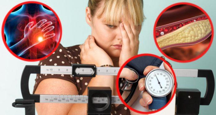 питание при избыточной массе тела